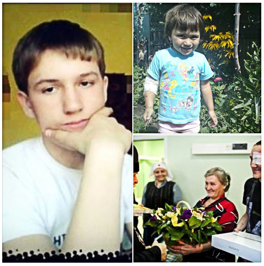 "15 years old Aleksander (""Sasha"") Shestak is another hero, who saved his little sister - his 3 years old niece Anastasia (""Nastenka"") by covering her with his body from the shells of the cassette bomb - the weapon forbidden by the Geneva Convention. This happened in from Nizhnekrynskoe, a village in the Amvrosievski district of Donbass. As Sasha was walking with his 3-year old niece, Nastenka, he heard shooting. Sasha heard it, so he pushed the girl to the ground and covered her with his own body. The girl got barely bruised. But he did: his face, arm, hand, knee are still being pieced together in surgeries. He lost one eye. The other eye wasn't damaged. He endures series of surgeries and skin grafts on his face. Alexander is now treated at the same Dr. L. M. Roshal's clinic in Moscow, along with Vanya (Ivan) Voronov. . Alexander already went through several surgeries in Donetsk, and then he got evacuated to Moscow."